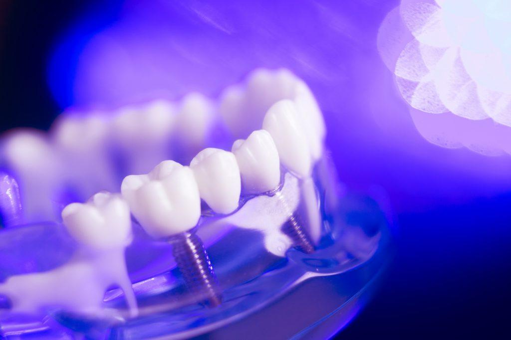 wybielanie zębów lampa