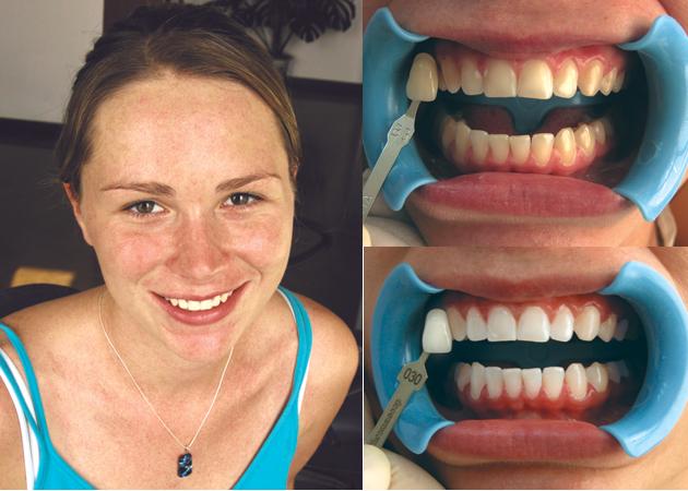 wybielanie zębów efekty przedipo