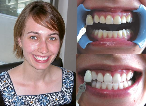 efekty wybielania zębów przedipo