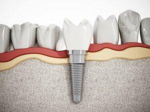 Rodzaje implantów zębów