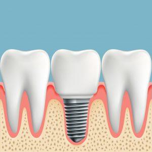 Wizualizacja wszczepionego implantu zęba
