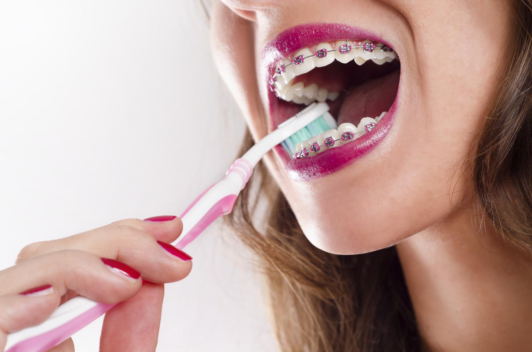 Szczotkowanie zębów z założonym aparatem