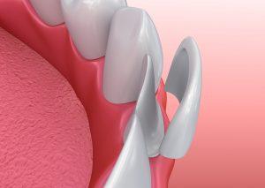 Licówki zębowe