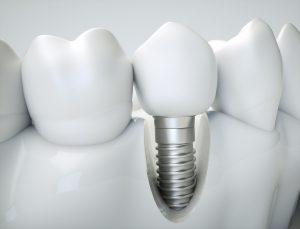 przekrój implantu zęba