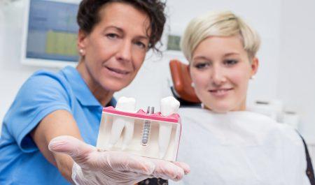Wysokiej jakości implanty zębowe są drogie