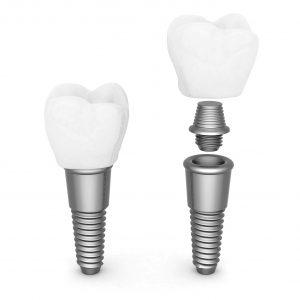 Implanty zębów - schemat