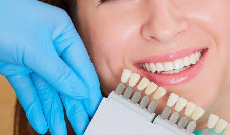 Wybielanie zębów warto zaplanować przez wszczepieniem implantów