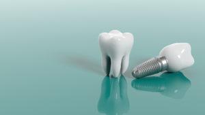 Implanty zębowe - mity i fakty