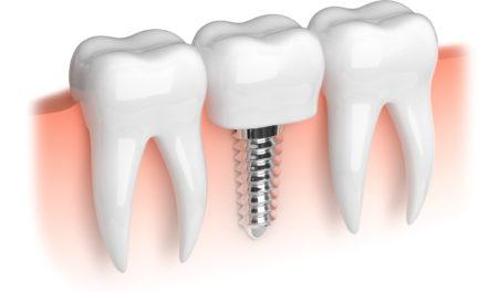 Implant po ekstrakcji