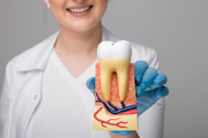 Usuwanie korzenia zęba - model zęba z korzeniem