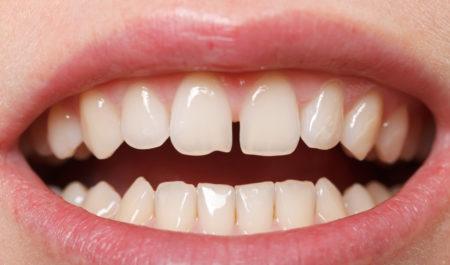 Diastema - przerwa między zębami
