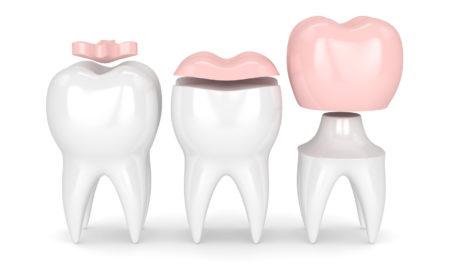 Odbudowa zniszczonego zęba - wypełnienia stomatologiczne i korona