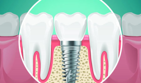 Osteointegracja