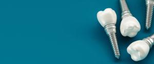 Ranking implantów zębów