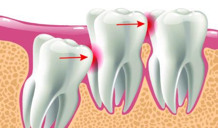Zęby zatrzymane - zatrzymana ósemka