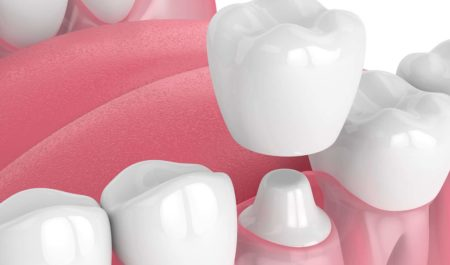 Korona zębowa nakładana na oszlifowany ząb