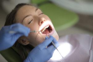 Usuwanie przebarwień zębów Kraków